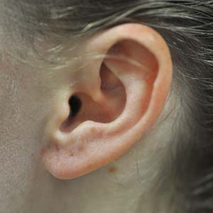 Earlobe repair after photo