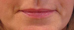 Lip enhancement after photo
