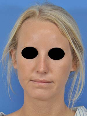 Rhinoplasty patient 6 after photo