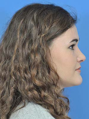 Rhinoplasty patient 1 after photo