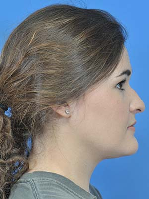 Rhinoplasty patient 1 before photo
