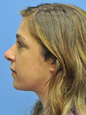 Rhinoplasty patient 2 after photo