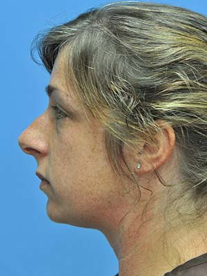 Rhinoplasty patient 2 before photo