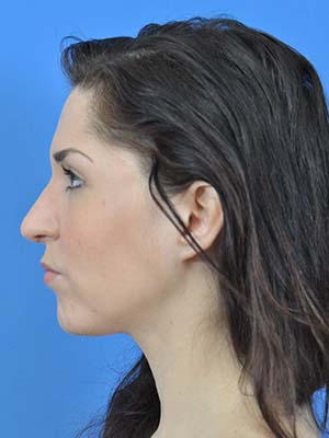 Rhinoplasty patient 3 after photo