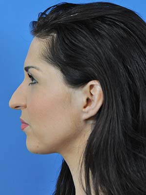 Rhinoplasty patient 3 before photo