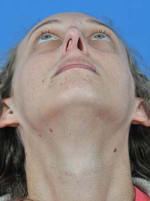 Rhinoplasty patient 4 before photo