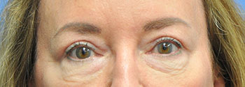 Blepharoplasty after photo