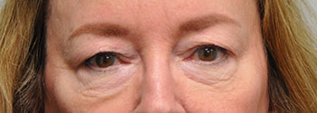Blepharoplasty Before photo