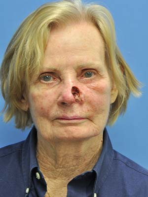 Skin cancer reconstruction patient 9 before photo