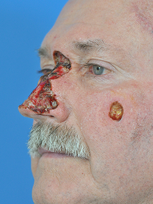 Skin cancer reconstruction patient 15 before side photo