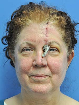 Skin cancer reconstruction patient 6 before photo