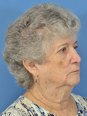 Skin cancer reconstruction patient 8 side after photo