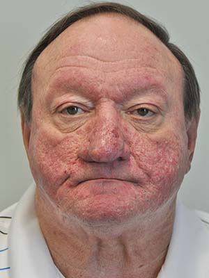Rosacea and Rhinophyma patient 1 before photo