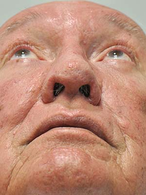 Rosacea and Rhinophyma patient 2 after photo
