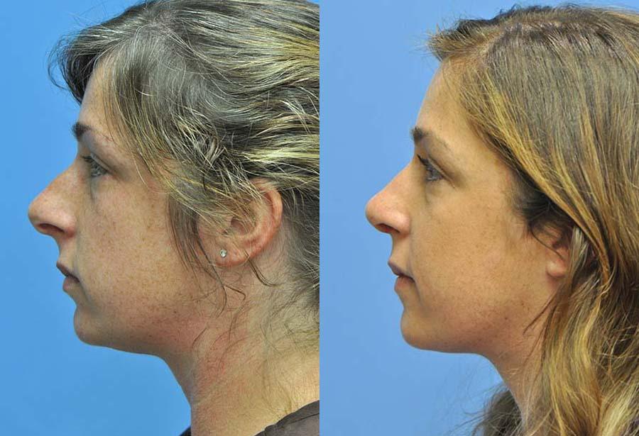 Rhinoplasty Nose Job Before & After Photos   Savannah Facial
