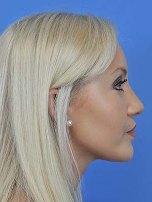 Rhinoplasty patient 8 after photo