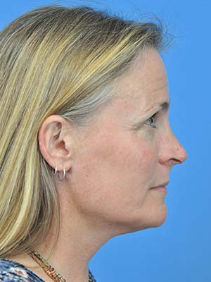 Rhinoplasty patient 9 after photo