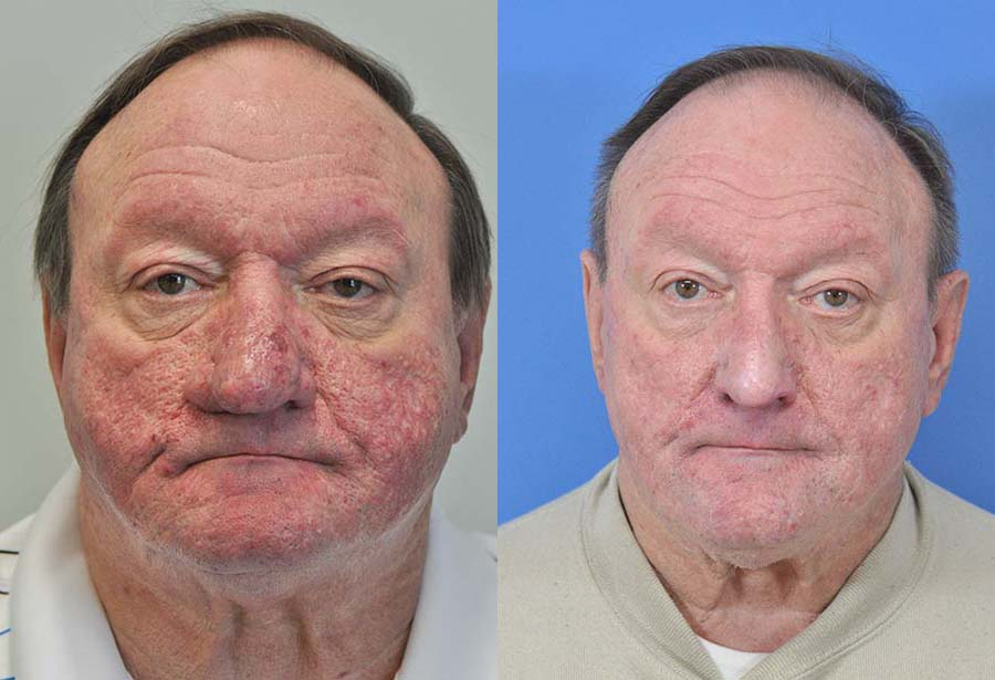 Rosecea Rhinophyma Before After Savannah Facial Plastic Surgery