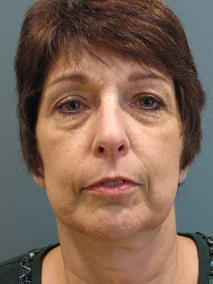 Sculptra patient 2 before photo